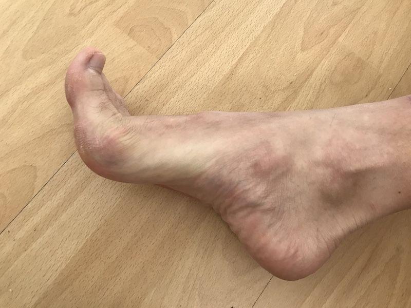 toes_flexing.jpg